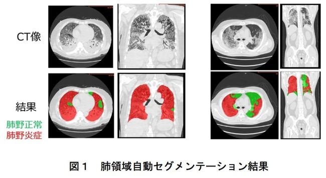 新型コロナウイルスによる肺炎CT画像のAIによる解析手法開発:時事ドットコム