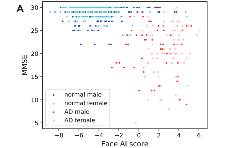 AIが認知症を顔写真だけで判断、正答率は90%以上   Ledge.ai